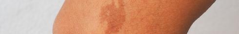 cafe_au_lait_birthmark