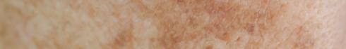 red_spots_skin